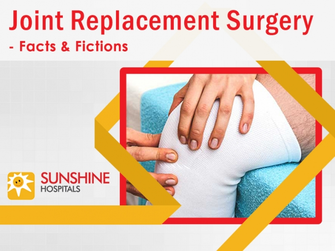 Myths Regarding Joint Replacement Surgery