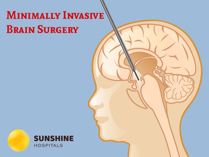 Minimally Invasive Brain Surgery