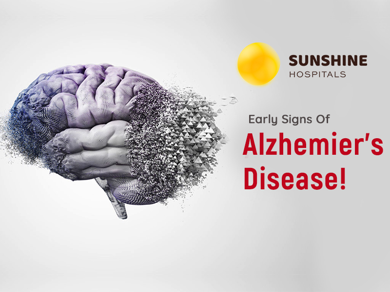 Know The Early Signs Of Alzheimer's Disease!