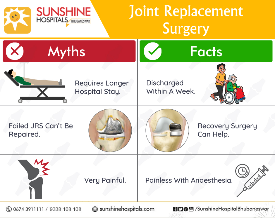 Top 2 Common Facts about Joint Replacement Surgery