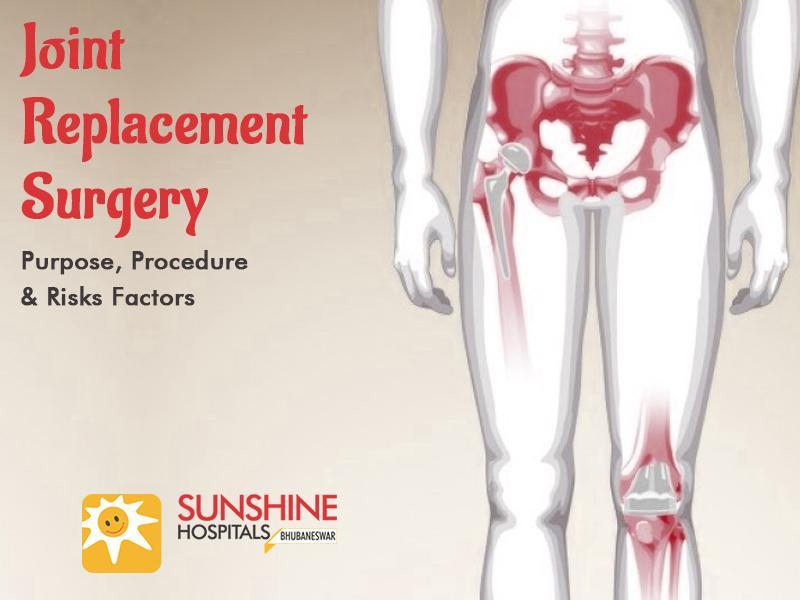 Joint Replacement Surgery – Purpose, Procedure & Risks Factors