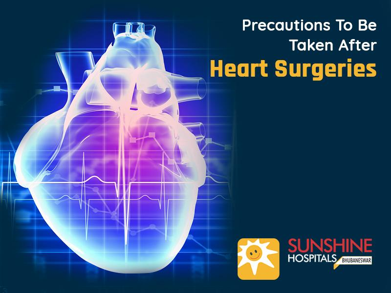 Precautions To Be Taken After Heart Surgeries