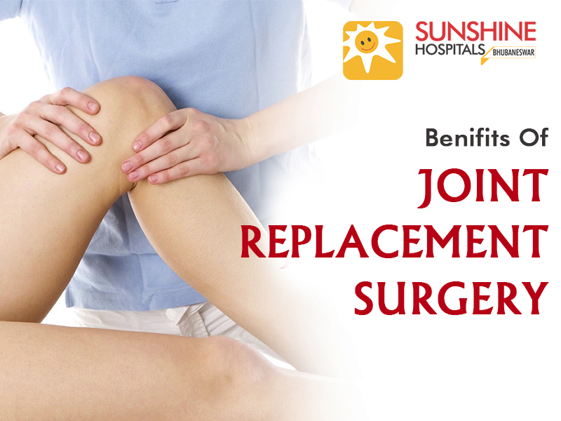 Top 10 Benefits of Joint Replacement Surgery