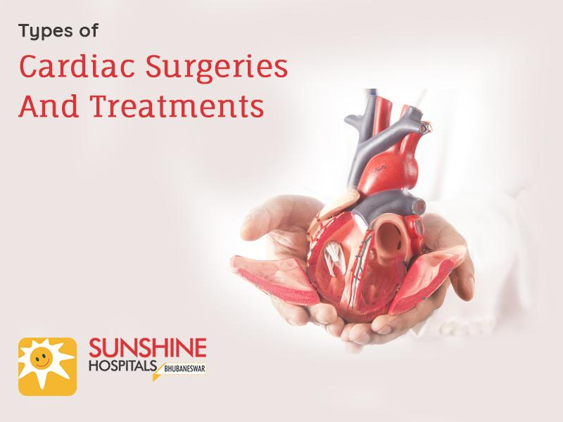 Types of Cardiac Surgeries and Treatments