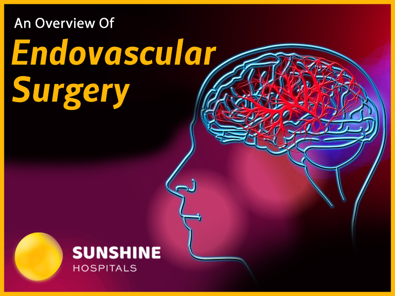 A Complete Overview Of Endovascular surgery