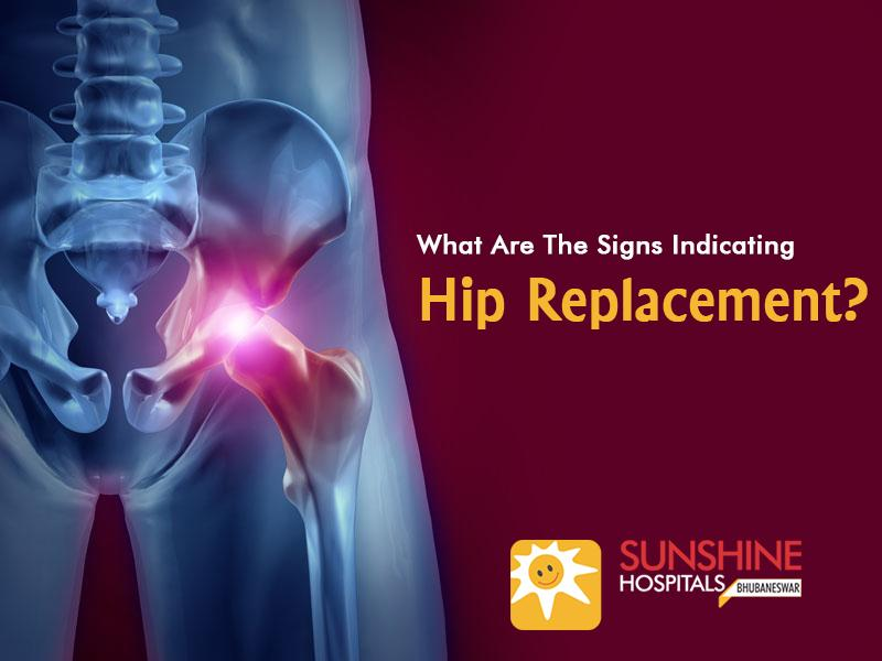 What Are The Signs Indicating The Hip Replacement?