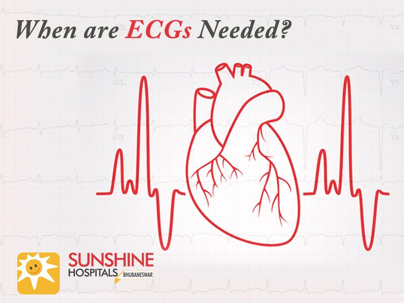 When are ECGs Needed?