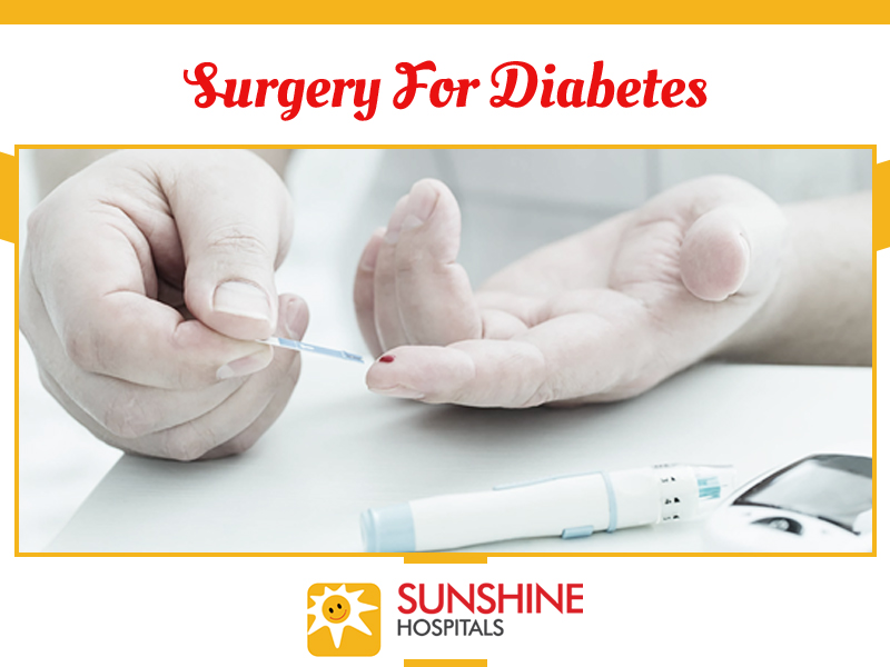 surgery-for-diabetes