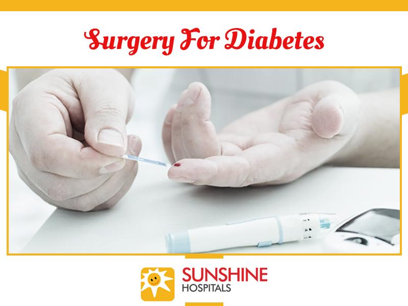 surgery-for-diabetes