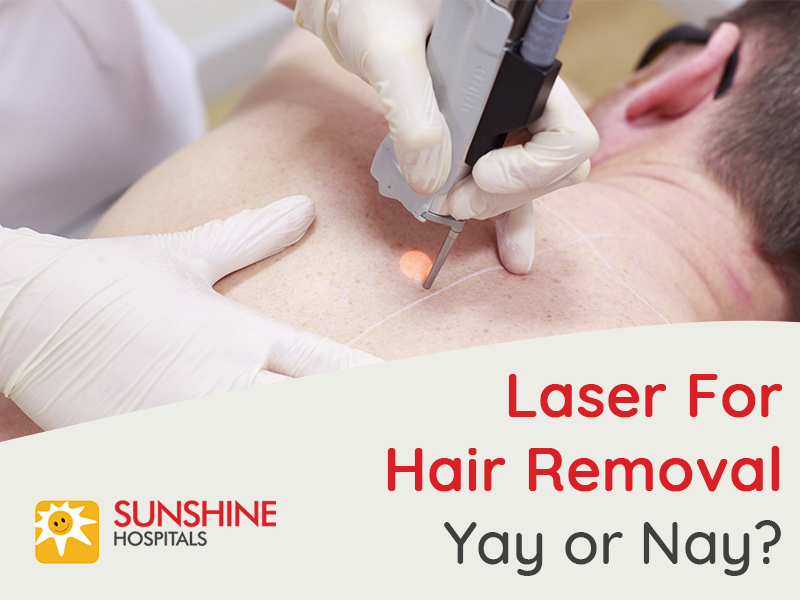 Laser-for-hair-removal