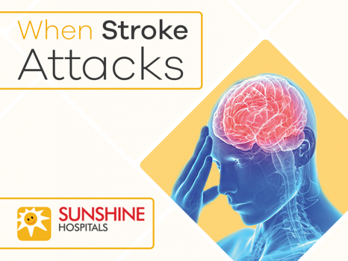 Brain Stroke: An Overview