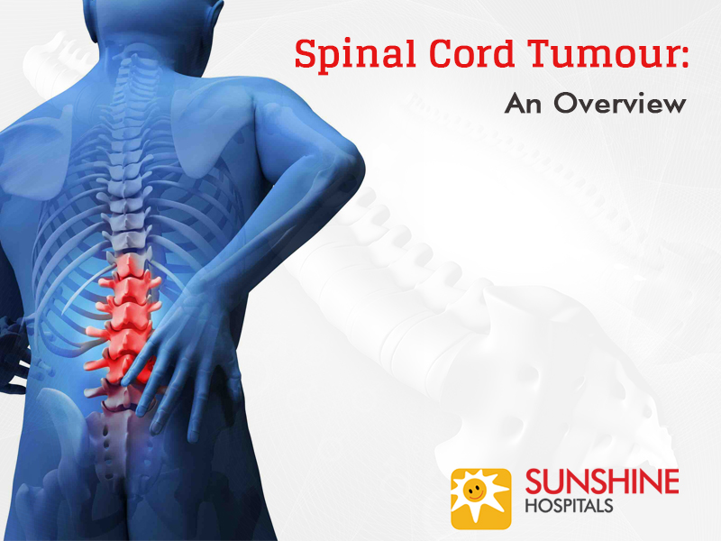 Spinal Cord Tumour