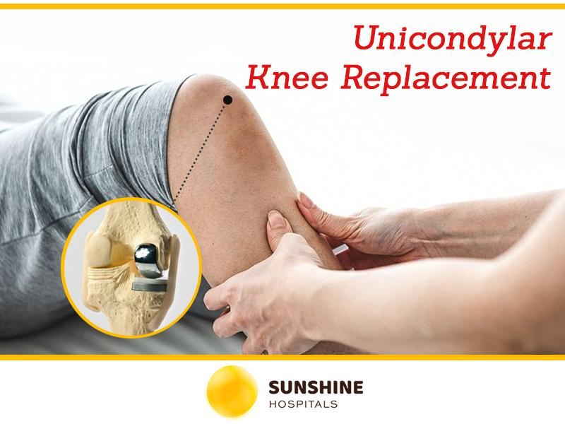 Unicondylar Knee Replacement – Reap The Combined Benefits Of Surgery & Knee Preservation