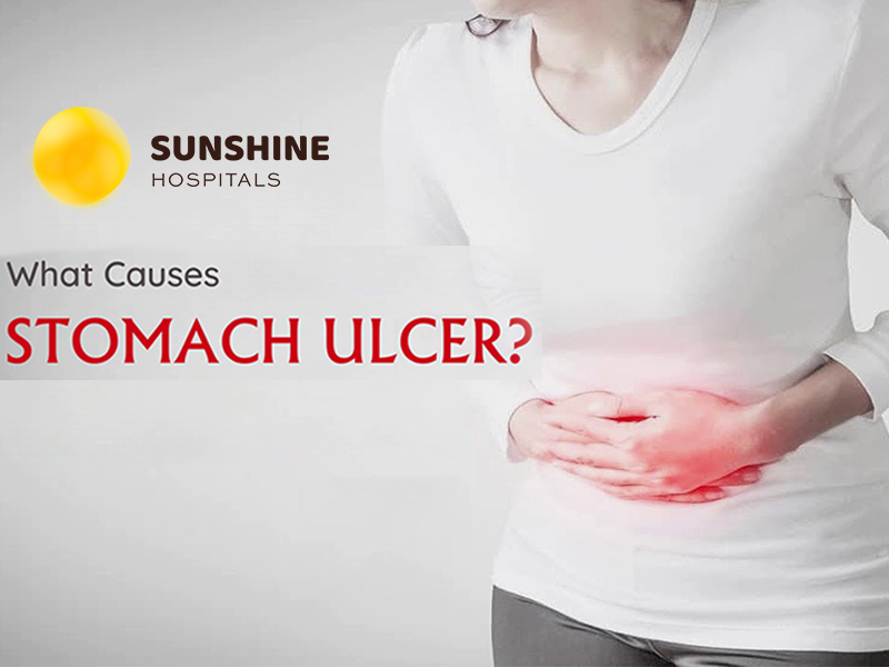 Best hospitals in hyderabad for stomach ulcer