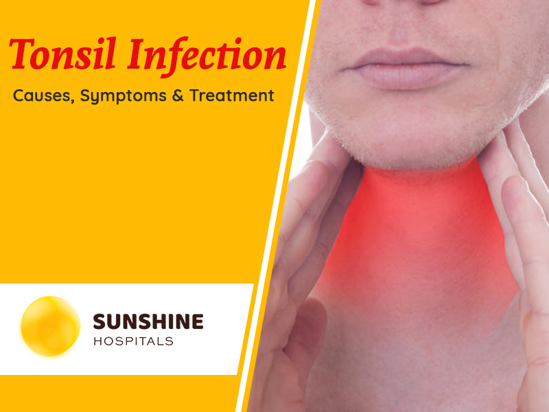 Tonsil Infection