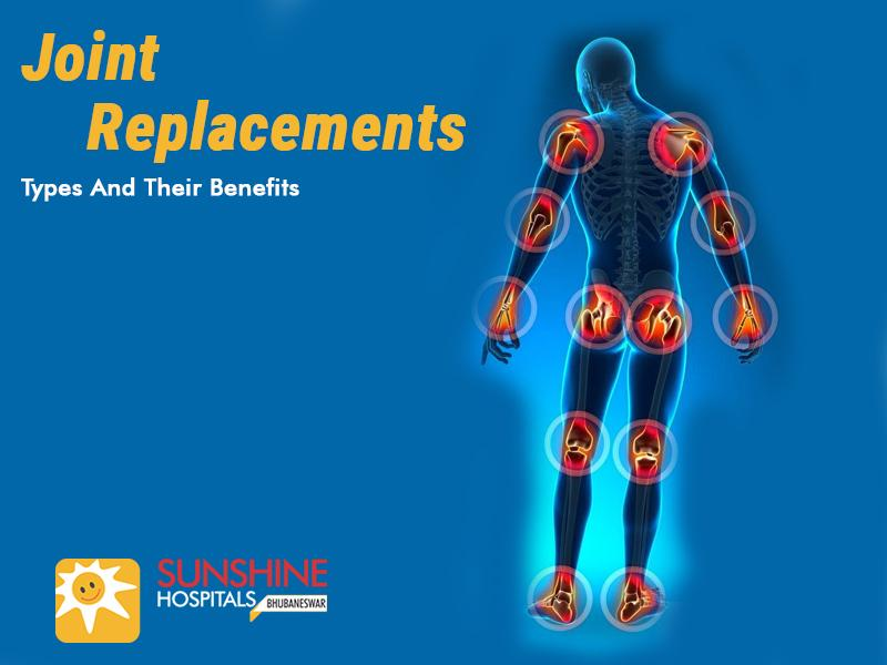 Joint Replacements – Types and Their Benefits