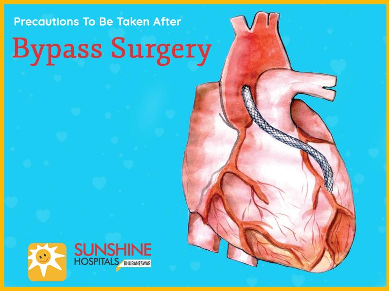 Precautions-To-Be-Taken-After-Bypass-Surgery