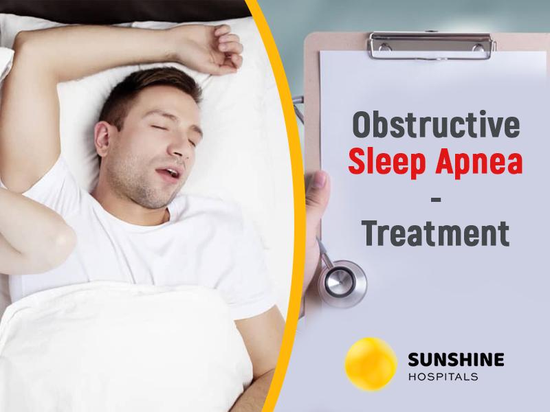 Obstructive Sleep Apnea: Treatment
