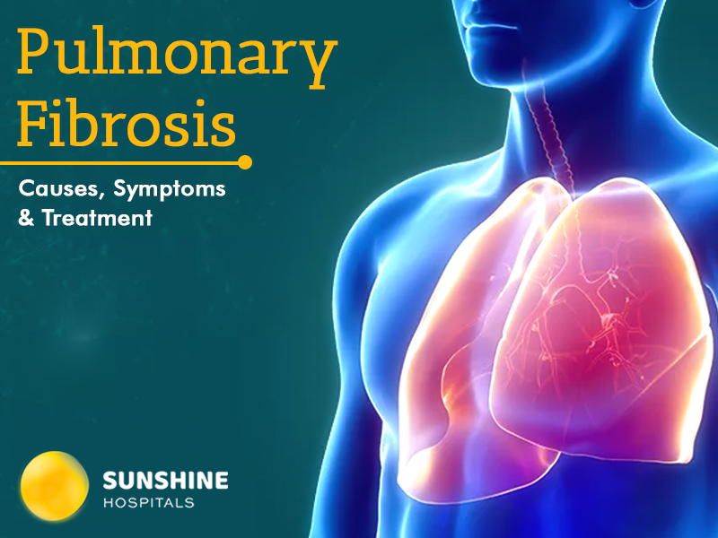 Pulmonary Fibrosis – Causes, Symptoms And Treatment