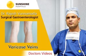 Dr Rajesh Vunnamatla Talks About Causes and Treatment Of Varicose Veins