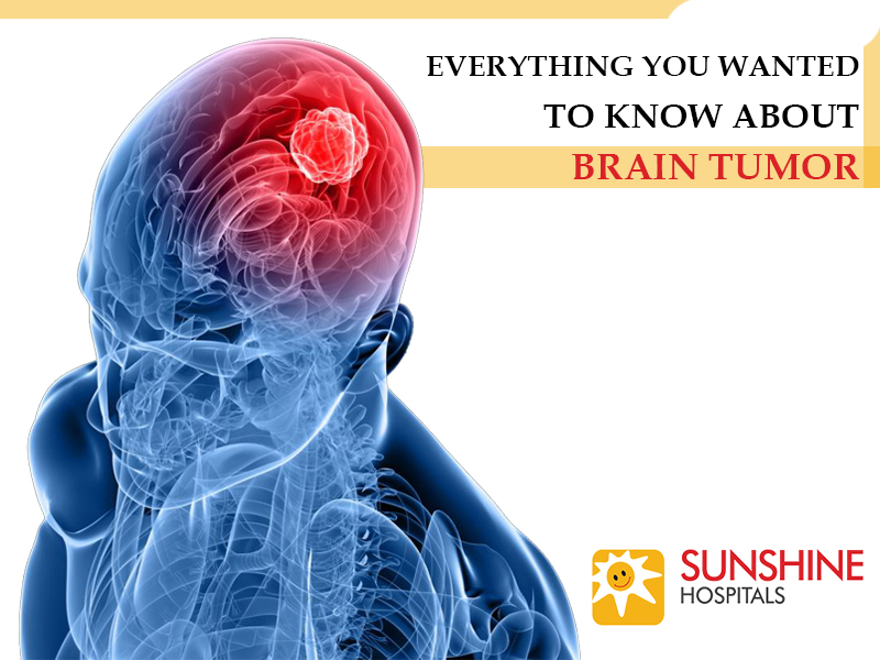 Everything You Wanted to Know About Brain Tumor