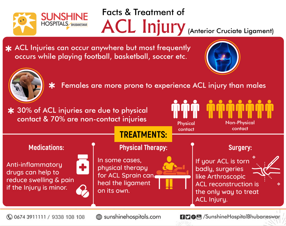 ACL Injuries – Facts & Treatment