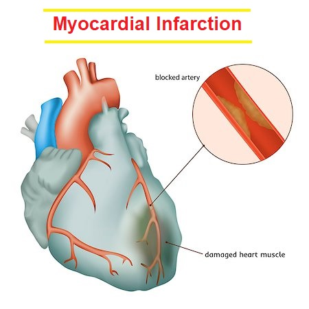 Myocardial Infarction - An Overview