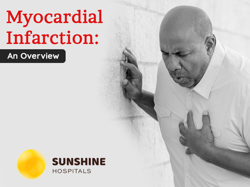 Myocardial Infarction – An Overview