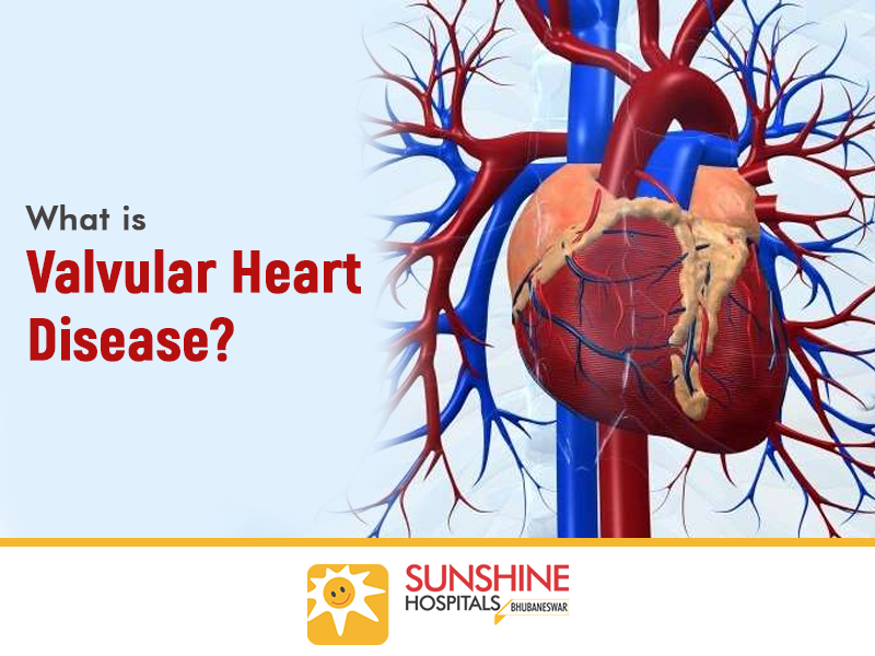 What is Valvular Heart Disease?