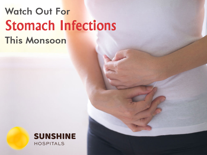 Best hospitals in hyderabad for stomach ulcer 1