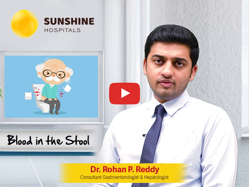 Dr. Rohan P. Reddy, Consultant Gastroenterologist & Hepatologist talks about Blood in the Stools