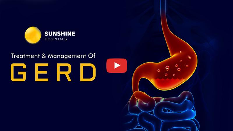 GERD Treatment & Management