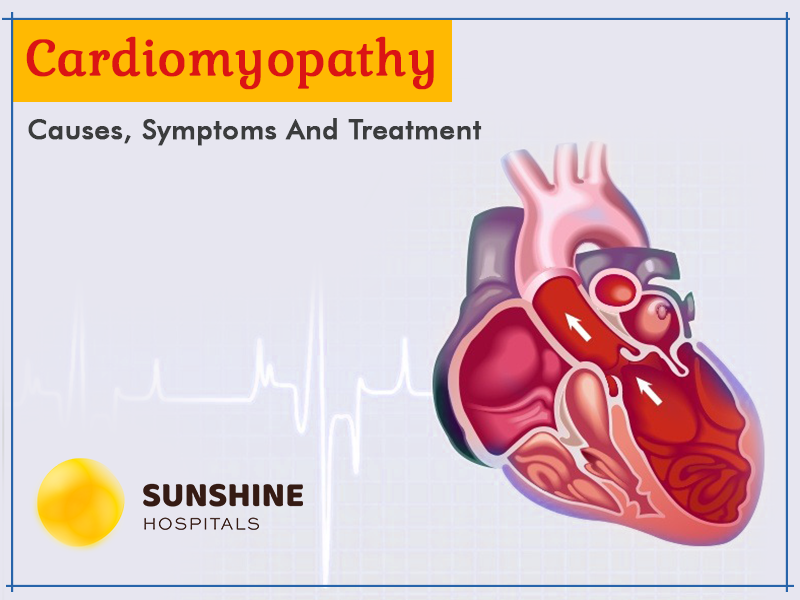 Cardiomyopathy – Causes, Symptoms, And Treatment