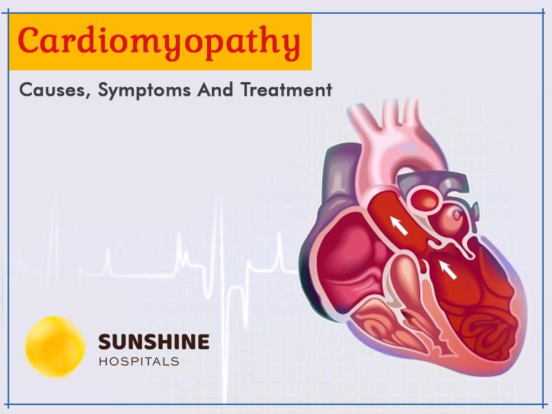 Cardiomyopathy Sunshine