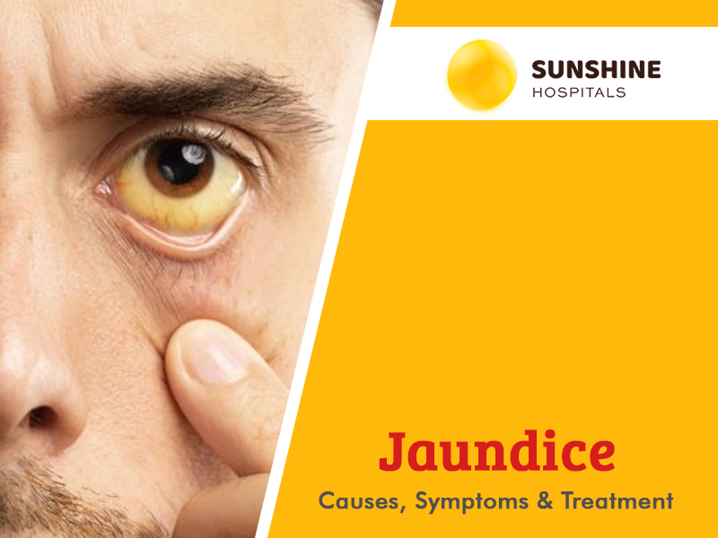 Jaundice – Causes, Symptoms & Treatment