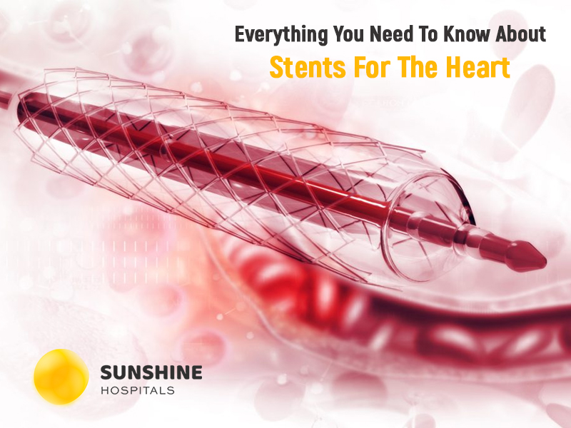 Everything You Need To Know About Stents For The Heart