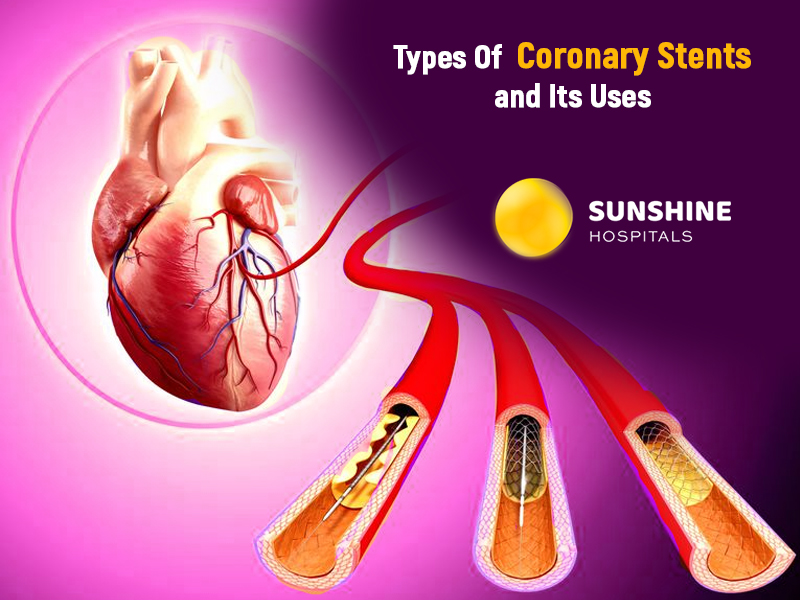 Types Of Coronary Stents and Its Uses