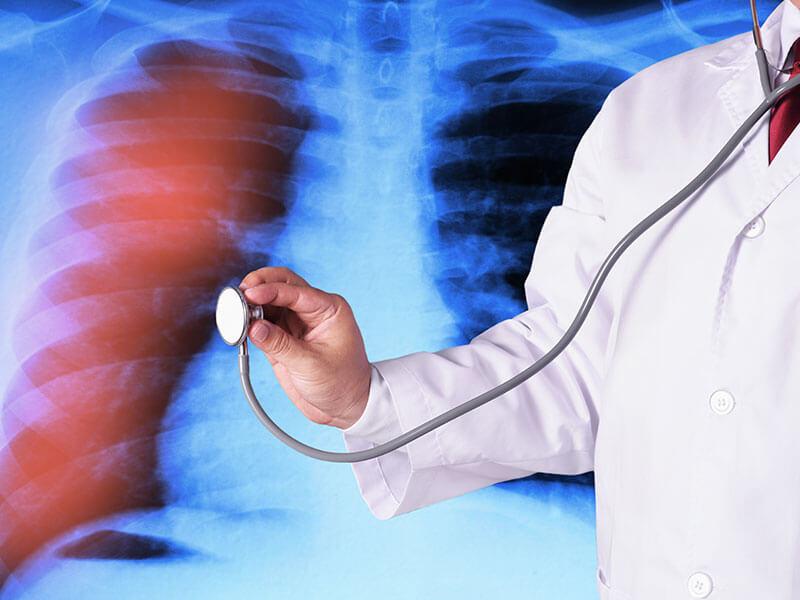 Treatment for respiratory system & sunshine hospitals