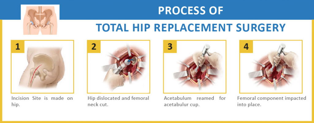 What Are The Signs Indicating The Hip Replacement