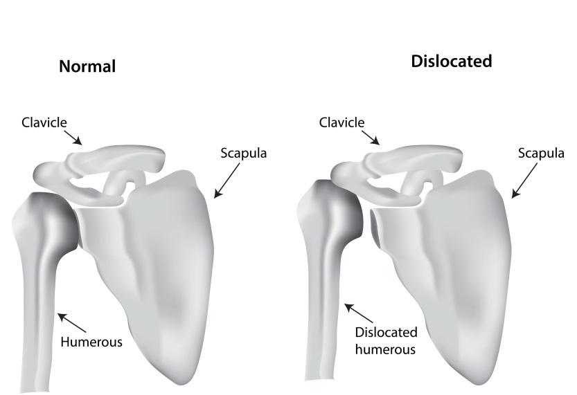 Joint-Replacement-Surgery-Purpose-Procedure-Risks-Factors-3
