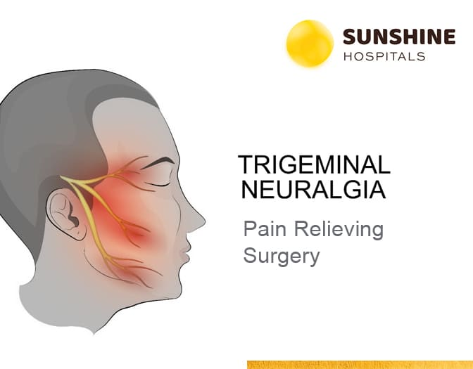 Trigeminal neuralgia treatment in Hyderabad