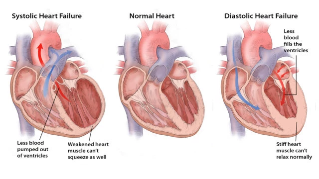 Types of Cardiac Surgeries and Treatments3