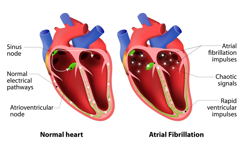 What Are The Signs Of Heart Diseases2