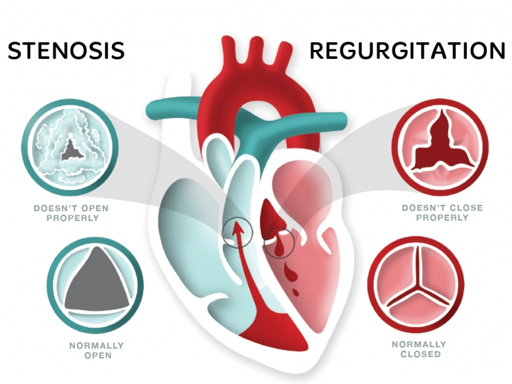 What Are The Signs Of Heart Diseases3
