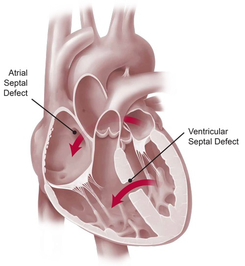 What Are The Signs Of Heart Diseases4