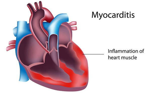 What Are The Signs Of Heart Diseases6