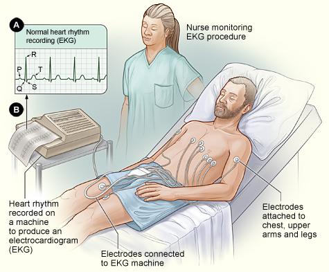 When are ECGs Needed2