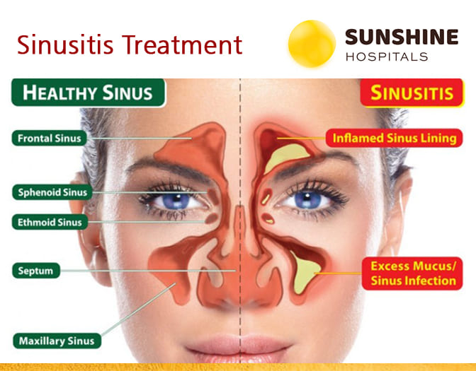 Sinusitis Treatment in Hyderabad